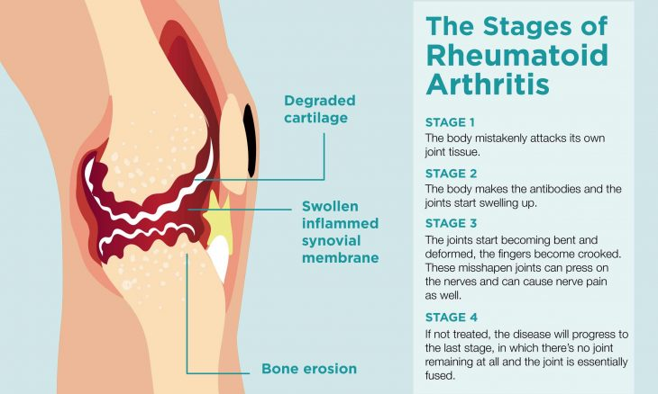 what are the 4 stages of rheumatoid arthritis