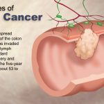 stage 4 colon cancer