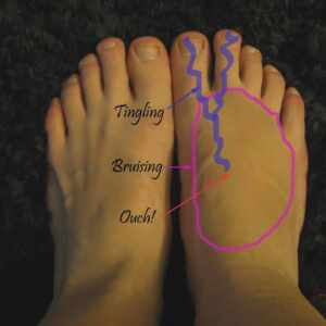 Top of foot pain
