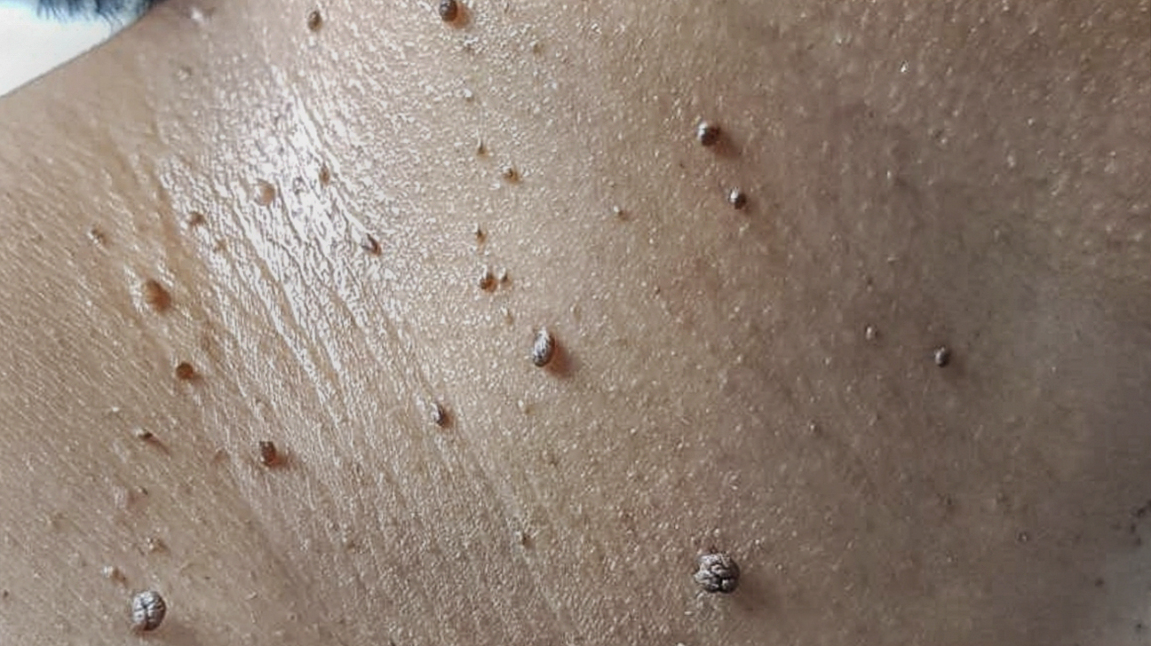 what causes skin tags