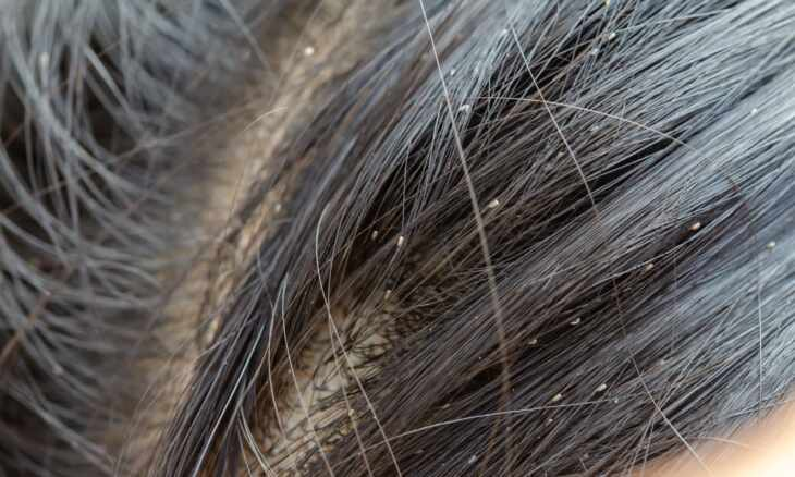 what does lice look like